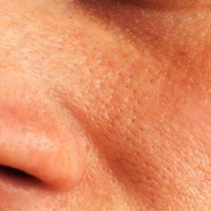 contrastare i pori dilatati